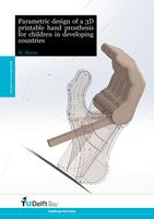 Parametric design of a 3D printable hand prosthesis for children in developing countries