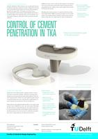 Control of cement penetration in TKA